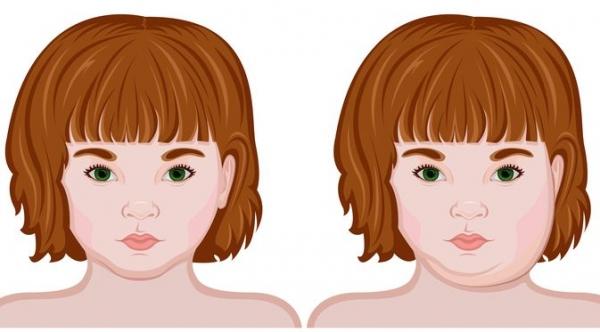 Cegah Parotitis Pada Anak Dengan Vaksin MMR